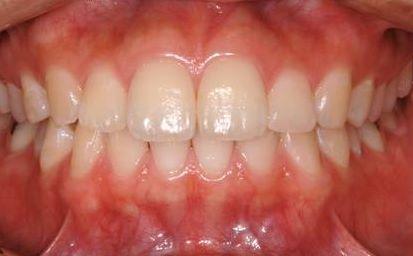 健康な歯周組織