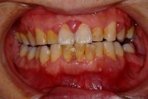 (治療前) 前歯の歯と歯の間の歯茎が特に腫れています